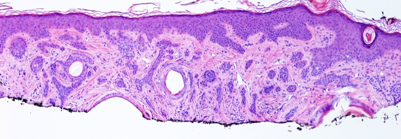 Slide 2: Higher magnification discloses a well differentiated basaloid proliferation that assumes a cord-like irregular growth pattern within the dermis.