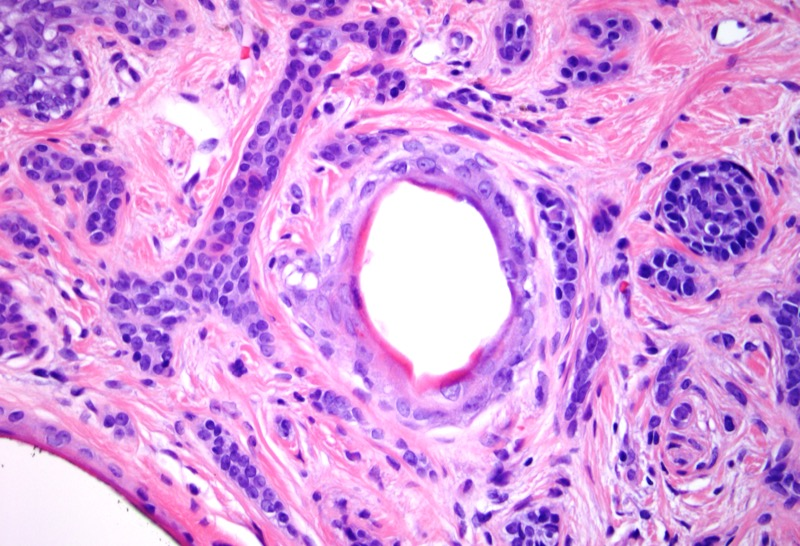 Slide 4: As well there are well defined small cysts lined by mature squamous epithelium with central keratin.