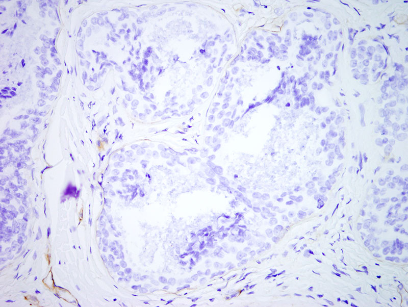 Slide 6: The type-IV collagen is also abnormal as a number of the tubuloalveolar structures show diminution in the staining of the epithelial basement membrane collagen. The diagnosis is that of an aggressive digital papillary adenocaricnoma.