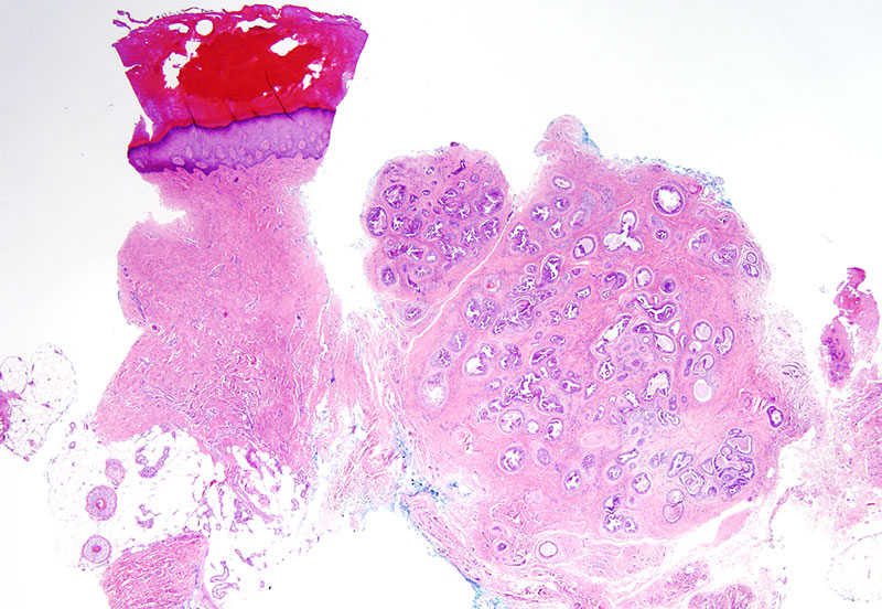 Slide 1: 44 year-old man with a left index finger ulcerated lesion. The biopsy shows a glandular neoplasm that involves the superficial and deep dermis.