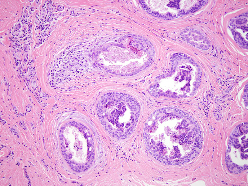 Slide 3: While overt anaplasia is not seen, in a number of the atypical tubular alveolar structures the stromal response is a mucinous fibrotic one.  Many of the glandular ductal units exhibit striking papillary hyperplasia with cellular atypia and necrosis.  Such foci suggests early infiltration of the tumor into the surrounding stroma