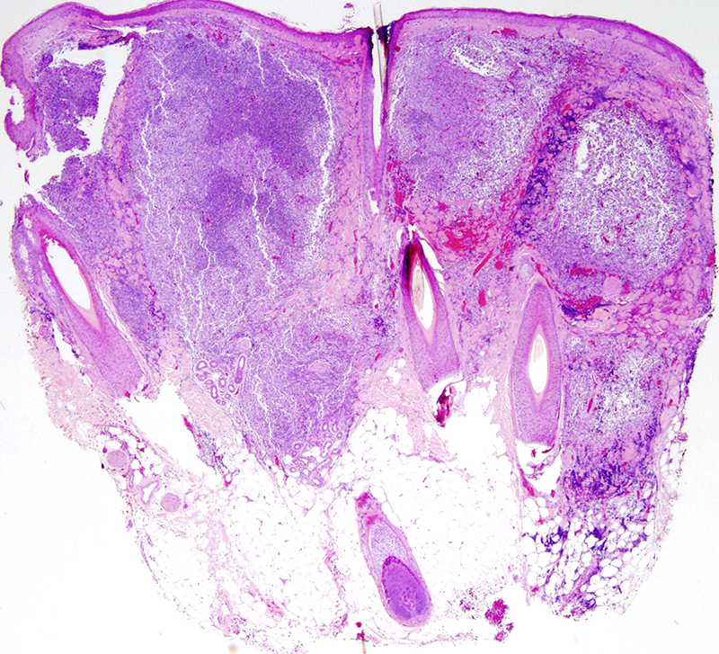 Slide 1: 675 year-old woman with multiple scalp lesions. The biopsy shows a striking nodular lymphocytic infiltrate. There is a grenz zone that separates the infiltrate from the epidermis. The infiltrate is accentuated around the hair follicle.