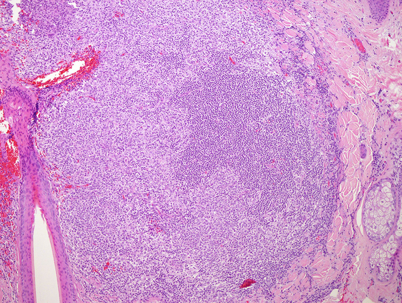 Slide 2: The infiltrate is accentuated around the hair follicle. It  is one predominated by irregular germinal center like foci.