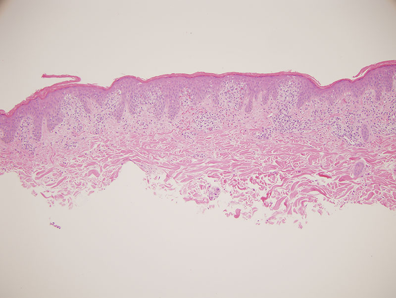 Slide 1: The biopsy shows a superficial lymphocytic infiltrate that is both interstitial and perivascular closely apposed to the epidermis. There are multiple foci of infiltration of the epidermis by lymphocytes. The lymphocytes tag along the dermal-epidermal junction but also assume a single cell pattern of migration into the spinous layer of the epidermis. There are some supervening degenerative epithelial changes characterized by basilar vacuolar alteration and focal dyskeratosis. The epidermal response to this epitheliotropic process is one that is varied ranging from epidermal hyperplasia to zones of epidermal attenuation. Also noteworthy are a few Langerhans cell rich containing collections of mononuclear cells within the epidermis. The epidermis itself is surmounted by a hyperkeratotic scale.