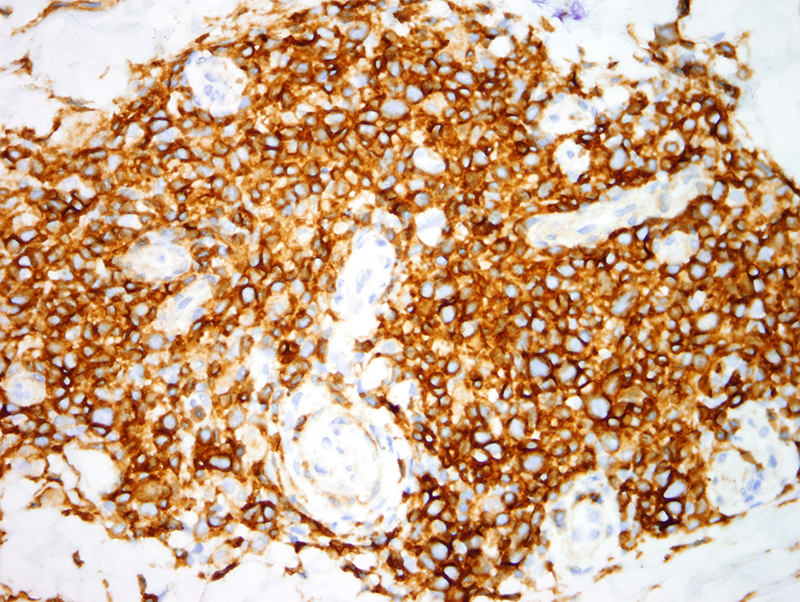 Slide 6: CD4 stain. The CD4 to CD8 ratio is markedly elevated and is in excess of 10:1 clearly indicative of CD4+ T cell lymphoproliferative disease.