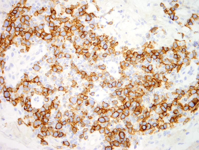 Slide 13: There is an extensive degree of staining for PD1.  The PD1 preparation highlights the larger cells but also the small and intermediate size lymphocytes.  Likely 60% of the infiltrate is PD1 positive.   The findings are diagnostic of a CD30+ PRIMARY CUTANEOUS CD4+ SMALL/MEDIUM SIZED PLEOMORPHIC T-CELL LYMPHOMA AS A DISTINCT SUBSET OF UNILESIONAL FOLLICULAR HELPER T CELL LYMPHOMA