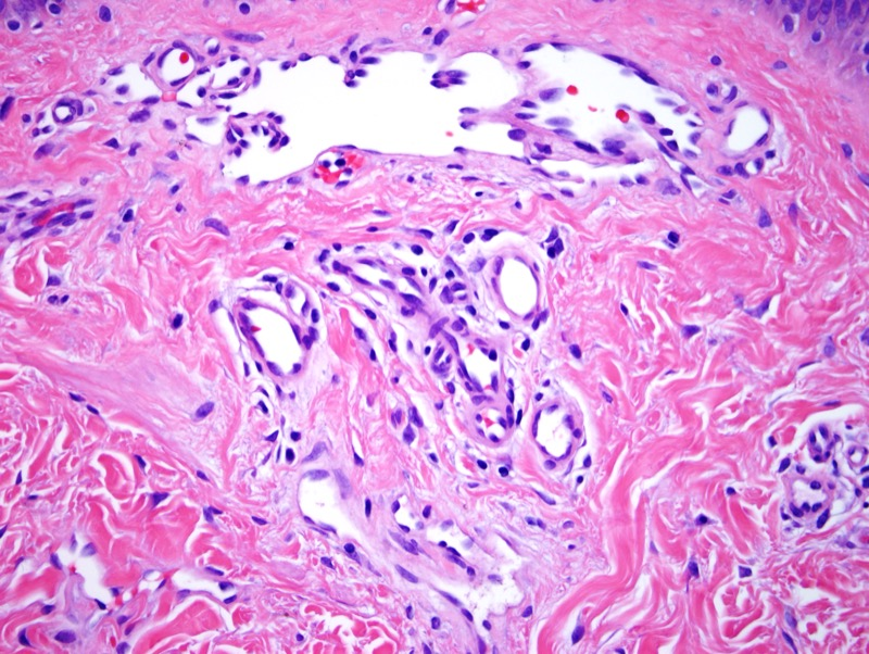 Slide 3: Focally, the lesion does assume a more irregular infiltrative growth pattern within the dermis.