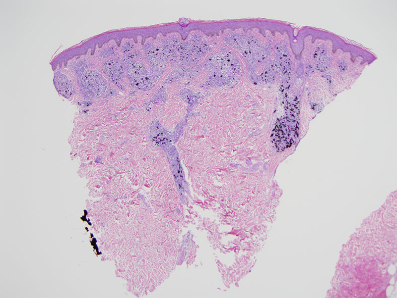 Slide 1: The biopsy shows a fairly extensive coalescing epithelioid granulomatous infiltrate in association with exogenous black carbon pigment.