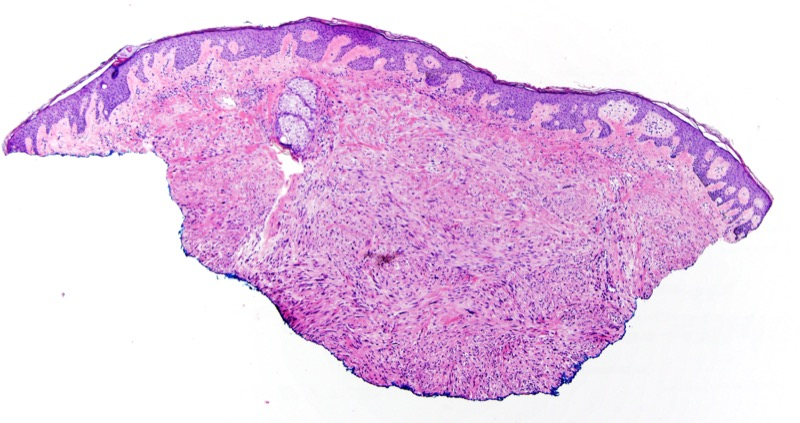 Slide 1: 460 year-old man with a chest nodule.  The biopsy shows a spindle cell proliferation that is of moderate to high cellularity assuming an intersecting vesicular growth pattern within the dermis.  There is a Grenz zone that separates the proliferation from the overlying epidermis.