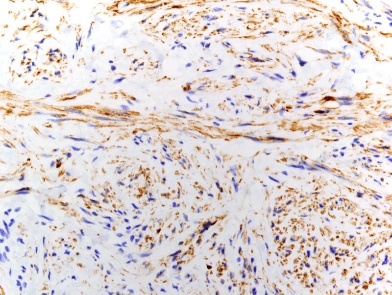 Slide 4: The neoplastic cells are desmin positive.  There is also marked staining for actin (not shown).  The S-100 and Melan-A preparations are negative.  The proliferation index is abnormal.  In areas of fairly striking cellular atypia the Ki-67 proliferation index is high (not shown).
