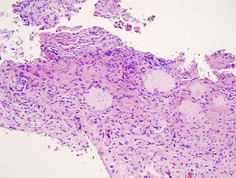 Slide 3: There is a foreign body response to polarizable material. A very striking feature in the biopsy is eosinophilic precipitates present within the corium. They assume a rounded globular morphology.