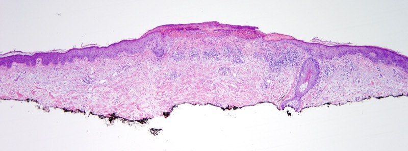 Slide 1: 65 year old man with an upper arm crusted papule. <br><br>The excision specimen shows a central zone of trauma with traumatic induced ulceration and background solar elastosis.