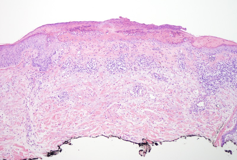 Slide 2: Higher magnification of the ulcerated area.