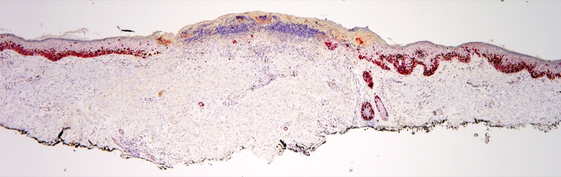 Slide 5: The extent of the proliferation is better highlighted by the double Ki-67/Melan-A stain which reveals extensive involvement of the entire excision specimen adjacent to the area of ulceration.