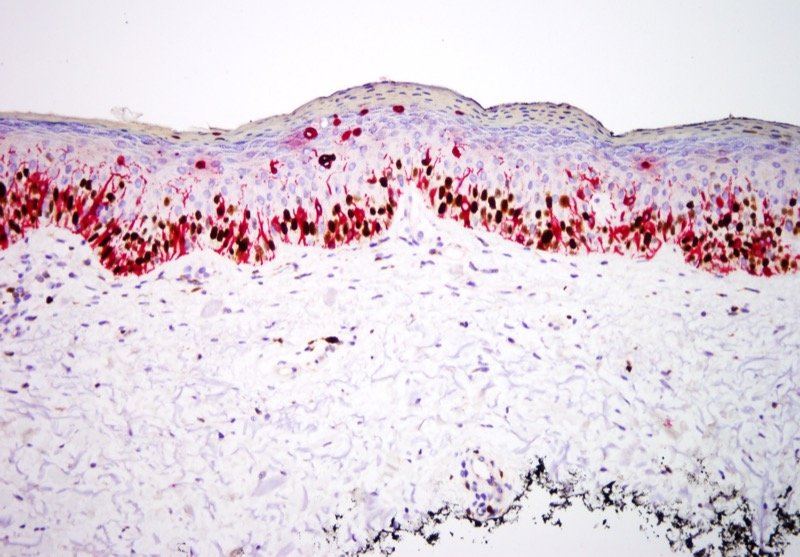 Slide 6: The proliferation is of high density with areas of pagetosis of abnormal melanocytes within the epidermis. There are a number of cells that do show double staining for Ki-67 (brown-nuclear) and Melan-A (red-cytoplasmic).