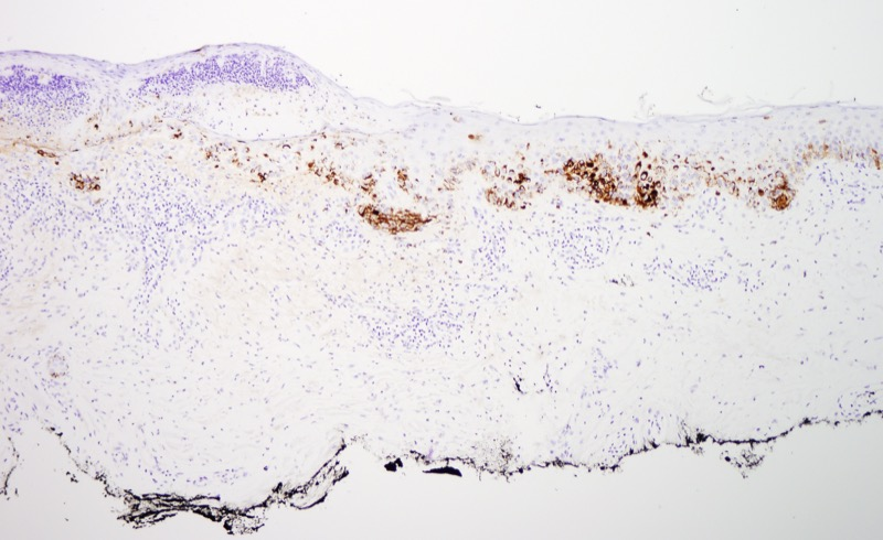 Slide 7: There is also extensive staining for HMB45.