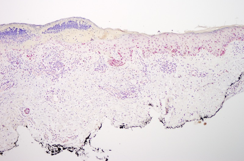 Slide 8: The R21 preparation demonstrates the abnormal nature of this melanocytic proliferation by virtue of the extent of pan nuclear staining of lesional melanocytes for R21.