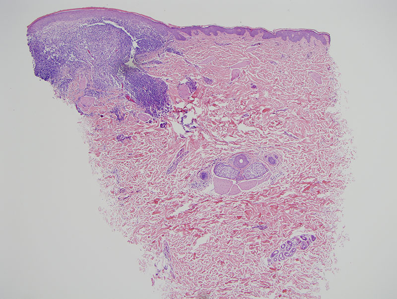 Slide 1: The biopsy shows a very robust inflammatory cell infiltrate in an area of carbon tattoo pigment deposition.