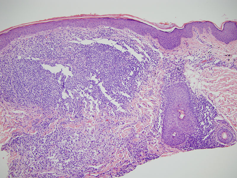 Slide 2: In particular, there is black carbonation of pigment associated with a nodular lymphohistiocytic infiltrate with an admixture of neutrophils and plasma cells. The lymphoid component of this infiltrate is quite striking and assumes a nodular almost pseudolymphomatous pattern within the dermis.