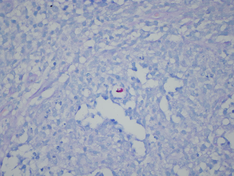 Slide 4: The acid fast stain shows a cluster of acid fast organisms in the nidus of inflammation while the Fite stain and GMS stains are negative.
