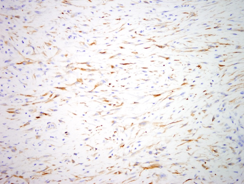 Slide 7: There is also focal staining for calponin while caldesmon is negative (not shown).