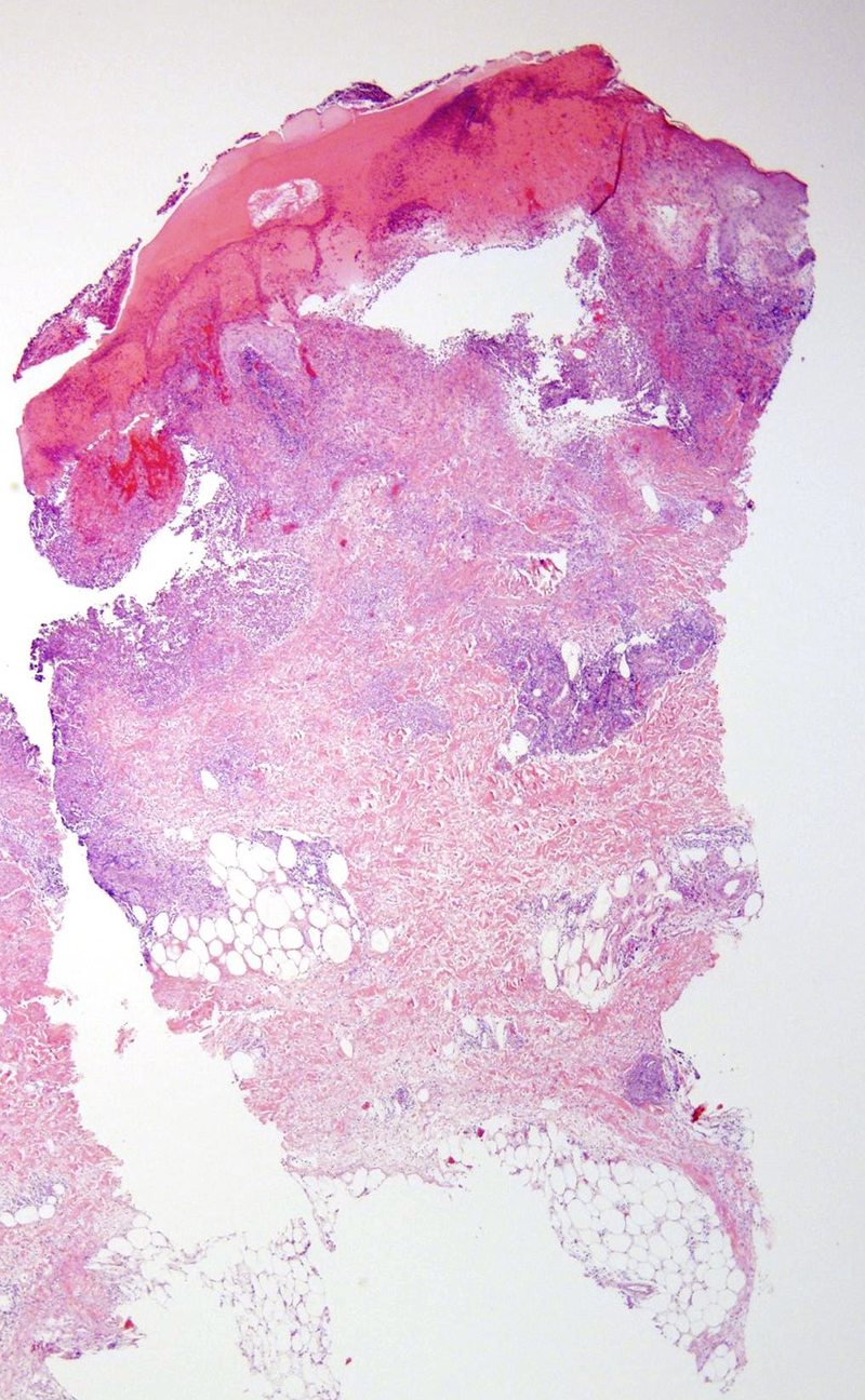 Slide 1: 60 year-old woman with a 5 day history of a pustular eruption on her palms and soles and papulovesicular lesions on her neck and upper back. <br /> There is denudement of the epidermis. The overlying scale is heavily imbued with blood. An inflammatory infiltrate extends into the dermis and subcutaneous fat.