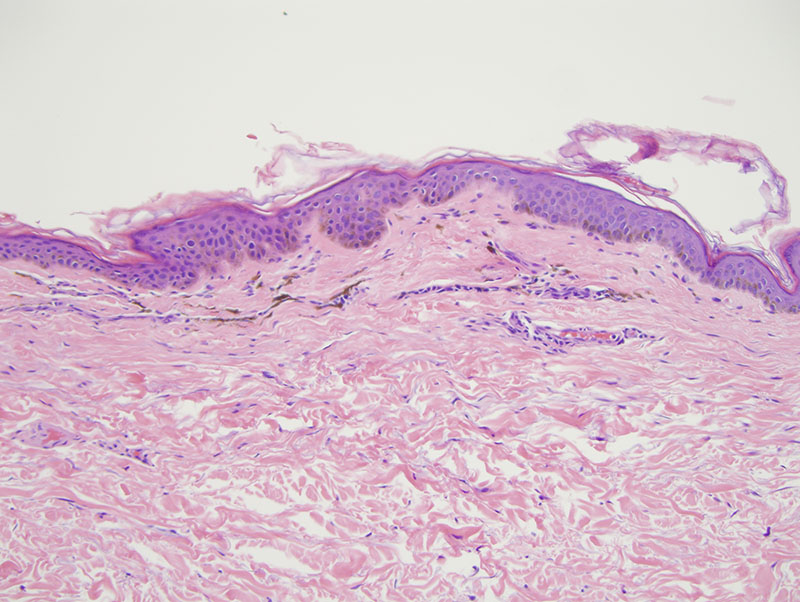 Slide 2: There are numerous melanophages within the superficial corium.  The superficial dermis exhibits a laminated pattern of fibrosis.