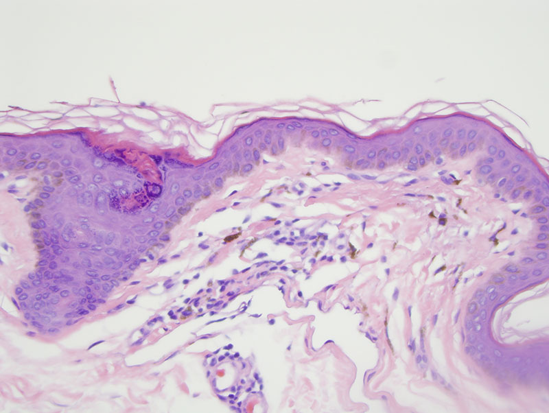 Slide 4: This poikilodermatous-like vascular ectasia has a supervening perivascular lymphocytic infiltrate.  The brown pigment in the macrophages is melanin as revealed by the degree of staining for Fontana-Masson, while the Iron stain is negative. The Fontana and Iron stains are not pictured.