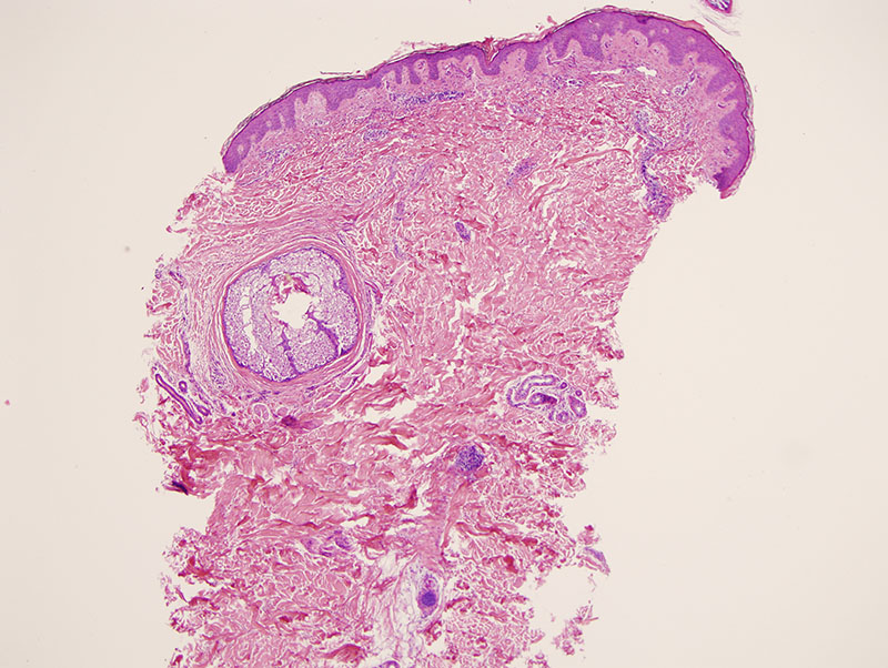 Slide 1: The biopsy shows a neutrophilic infiltrate within the dermis.