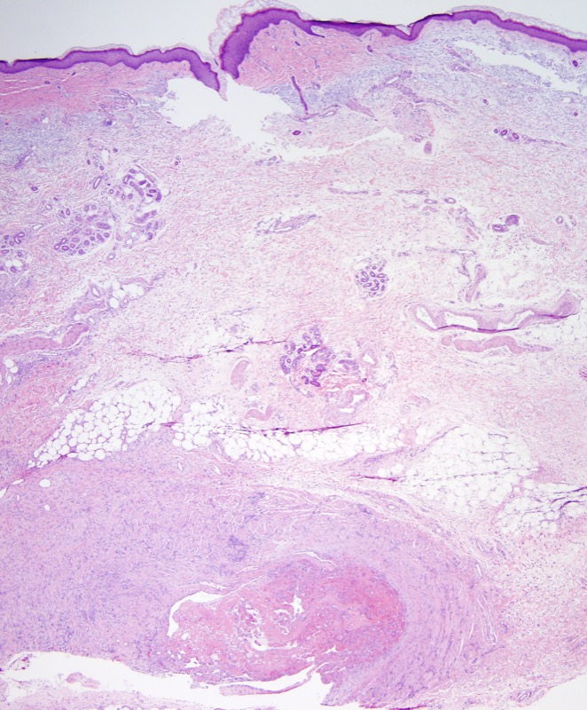 Slide 1: 70 year old woman with a forearm lesion. The tissue sections show a very striking inflammatory reaction involving a medium sized vein several millimeters in caliber. The vein is clearly situated in the subcutaneous fat.