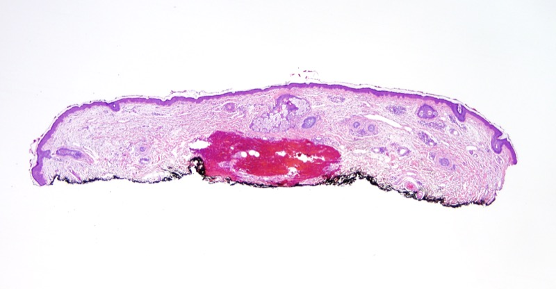Slide 1: 60 year old female. This specimen was received as a re-excision for a cheek basal cell carcinoma that closely approached the surgical margin.