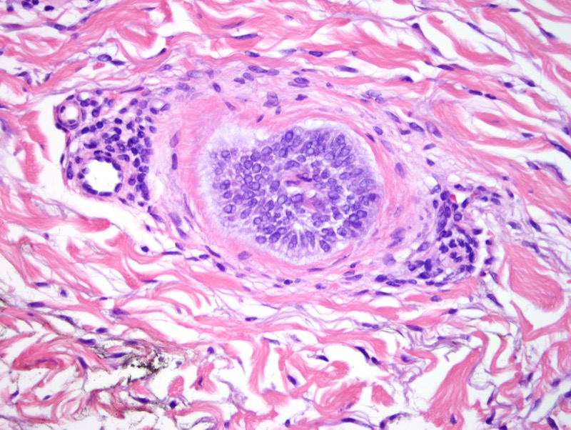 "Slide 4: Notice the two tapered nuclei in the center of the ""hair follicle""."