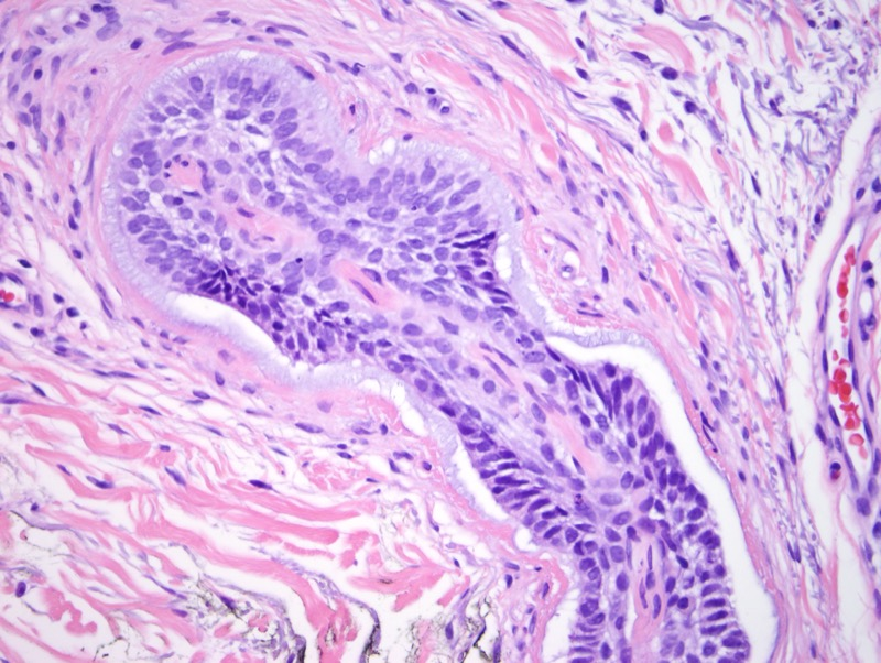 Slide 6: Residual BCC entrapping a nerve. The spindled wavy nuclei can be appreciated on this section.